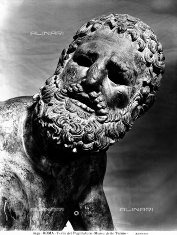 ADA-F-002149-0000 - Testa della Statua del Pugile conservata alle Terme di Diocleziano a Roma - Data dello scatto: 1890 ca. - Archivi Alinari, Firenze