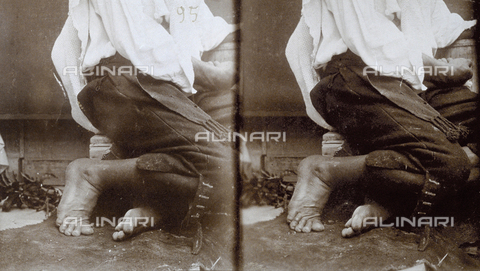 PDC-F-001448-0000 - Particolare dei piedi scalzi di un modello, Abruzzo - Data dello scatto: 1890-1900 - Archivi Alinari, Firenze