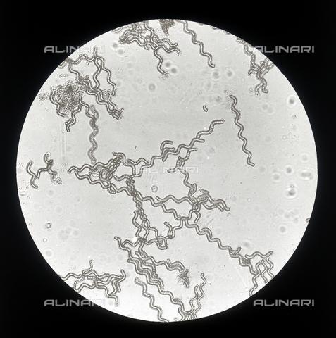 RGD-F-001616-0000 - Colonie filiformi di cellule di Spirulina Jenneri (Rivularia) ingrandite al microscopio - Data dello scatto: 1914 - Archivi Alinari, Firenze