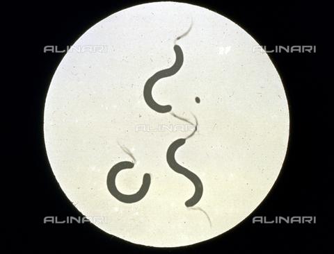 RGD-F-001718-0000 - Batterio appartenente alla famiglia delle 'Spirillacee', ingrandito al microscopio - Data dello scatto: 1914 - Archivi Alinari, Firenze