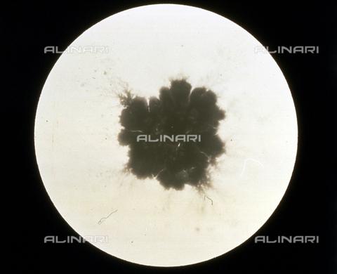 RGD-F-001738-0000 - Achorion Schoenleinii. Fungo parassita dell'uomo, ingrandito al microscopio - Data dello scatto: 1914 - Archivi Alinari, Firenze